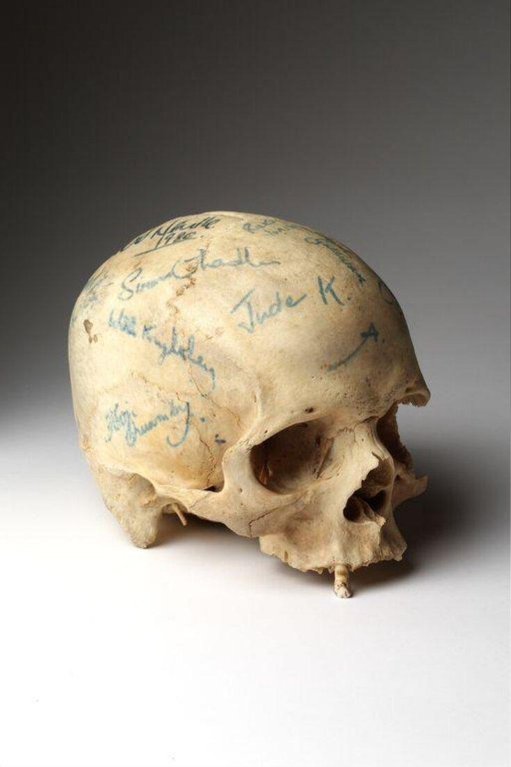 Skull top image